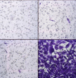 CytoSelect 24-well Cell Invasion, Fluorometric