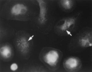 HAV Antibody