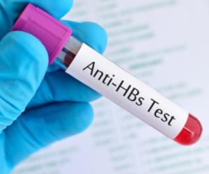 HBS Antigen