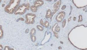 Prostate Specific Antigen Std Grade Antigen